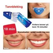 Tannbleking hjemme